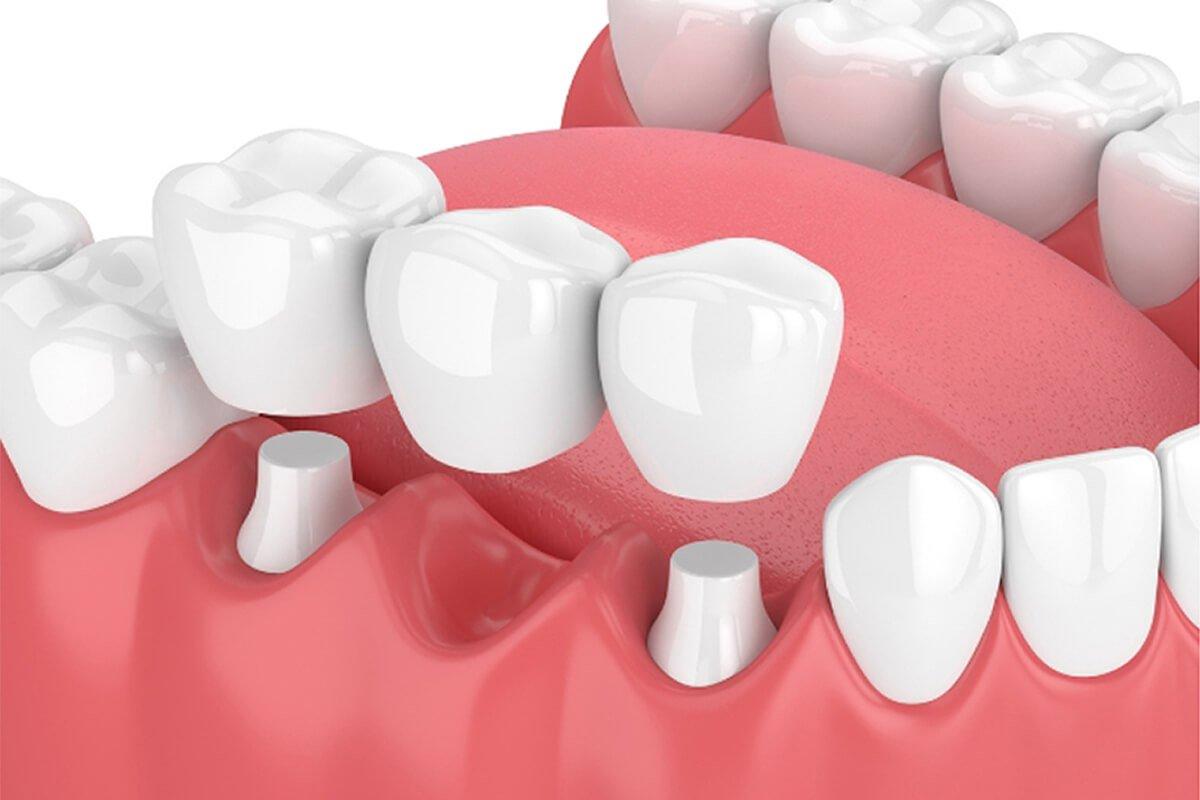 Dentisti a Reggio Emilia